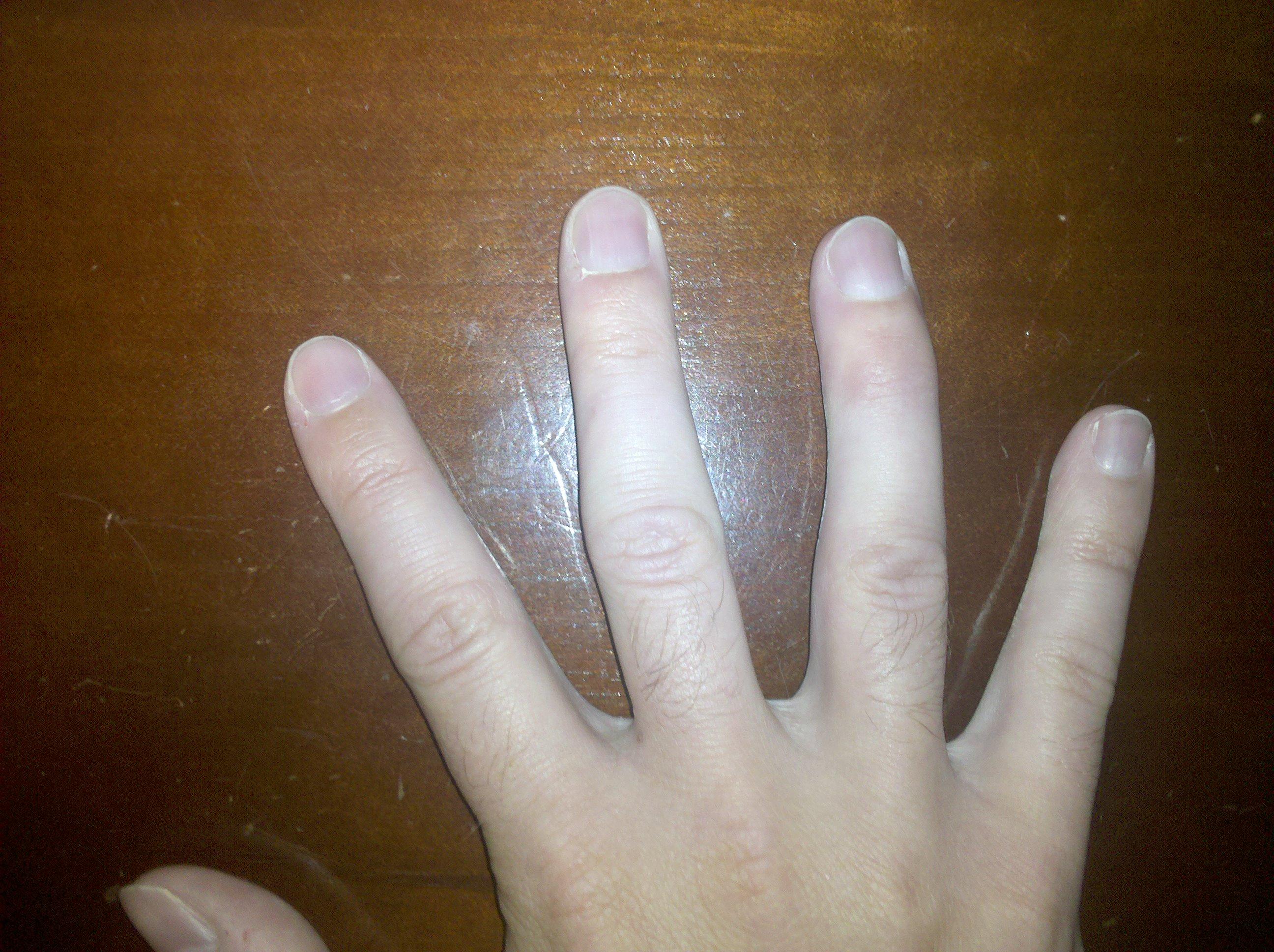 Really. broken thumb heal necessary